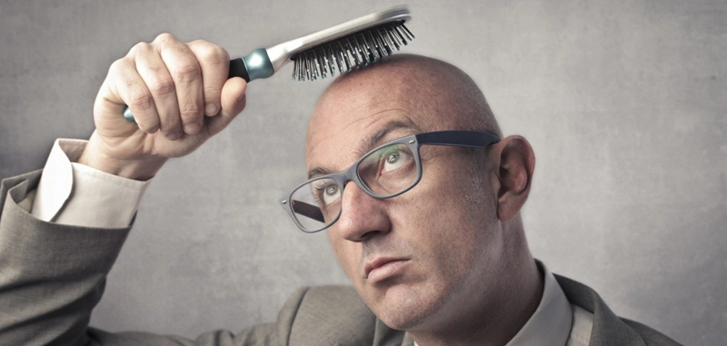 Men's hair loss treatments and solutions
